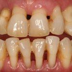 Como cuidar las encías para prevenir la enfermedad periodontal