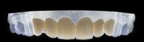 Las coronas dentales de zirconio son más ligeras que las de metal porcelana