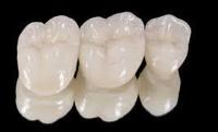 El disilicato de litio, y el óxido de zirconio son ejemplos de cerámicas dentales de alta resistencia que utilizamos a diario en la Clínica Gil