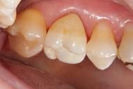 Corona en boca vista lateral
