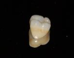 Corona en Zirconio con ajustes de color para semejar a los demás dientes
