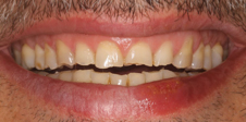 dientes desgastados por causa de bruxismo