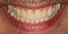 dientes arreglados, después de haber tenido bruxismo