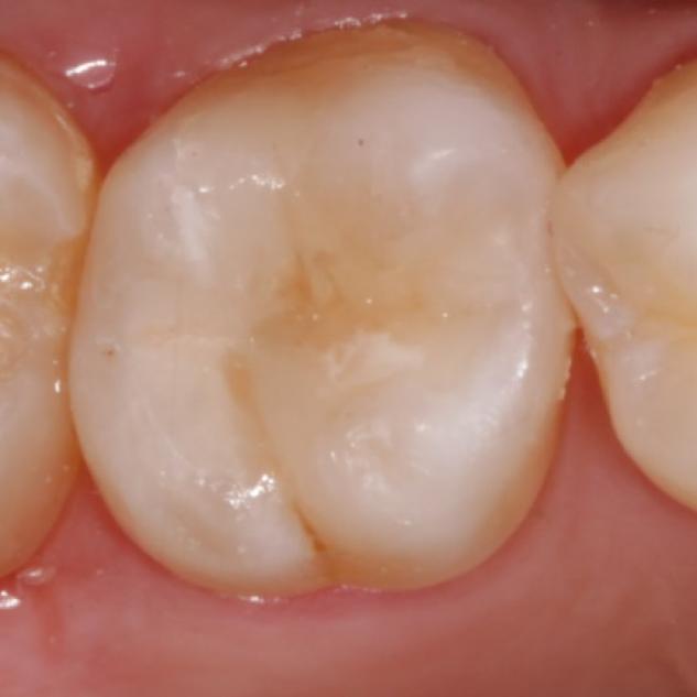 Calza dental