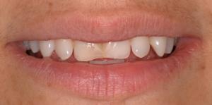 Mejoramiento de la sonrisa antes