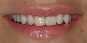 Mejoramiento de la sonrisa después