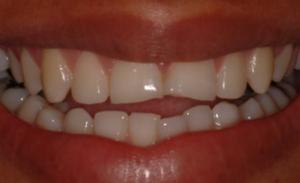 Rejuvenecimiento de la sonrisa con resinas antes