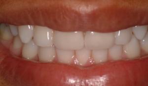 Rejuvenecimiento de la sonrisa con resinas después