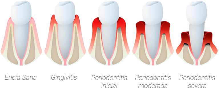 Cómo Prevenir la Enfermedad Periodontal: Gingivitis y Periodontitis