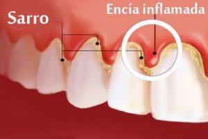 La causa principal del sangrado en las encías es la acumulación de placa en la línea de la encía