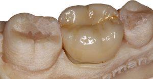 """se juega con los tonos """"maquillaje de la restauración"""" para que quede lo más parecido posible al resto de piezas dentales de la boca del paciente"""