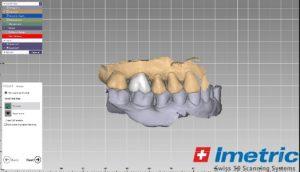 En el laboratorio se procede al diseño digital de la corona u otra restauración, con la cual se rehabilitará la pieza dental