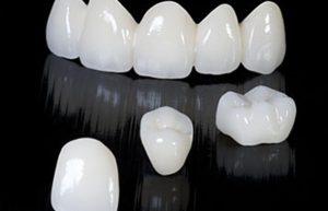 Una vez diseñada y revisada por el Prostodoncista, se procede a la fabricación de la misma mediante un proceso CAD/CAM