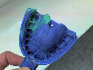 El primer paso para la fabricación de cualquier restauración dental es obtener un duplicado de la boca