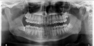 Radiografía Panorámica Extracción Cordales